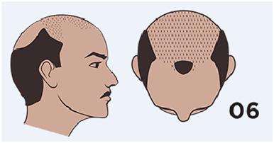 pelo fino masculino