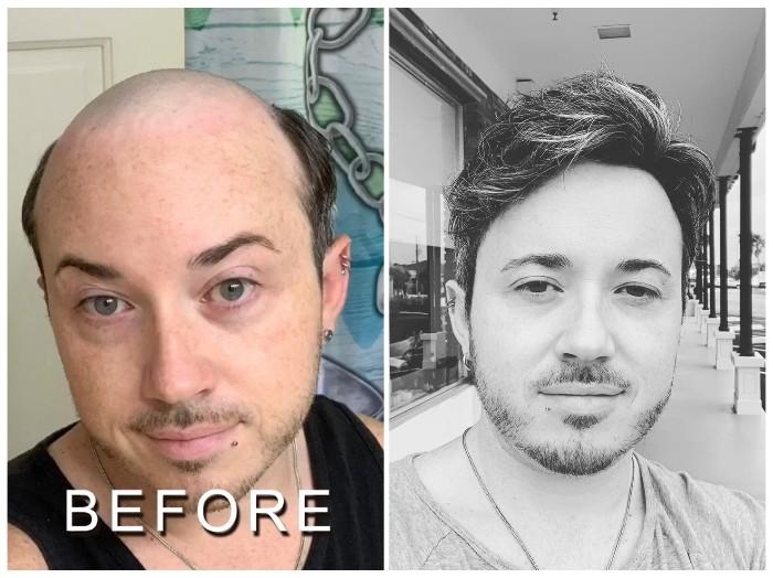 men's hair toupee