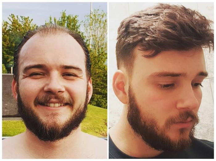 pérdida de cabello masculina