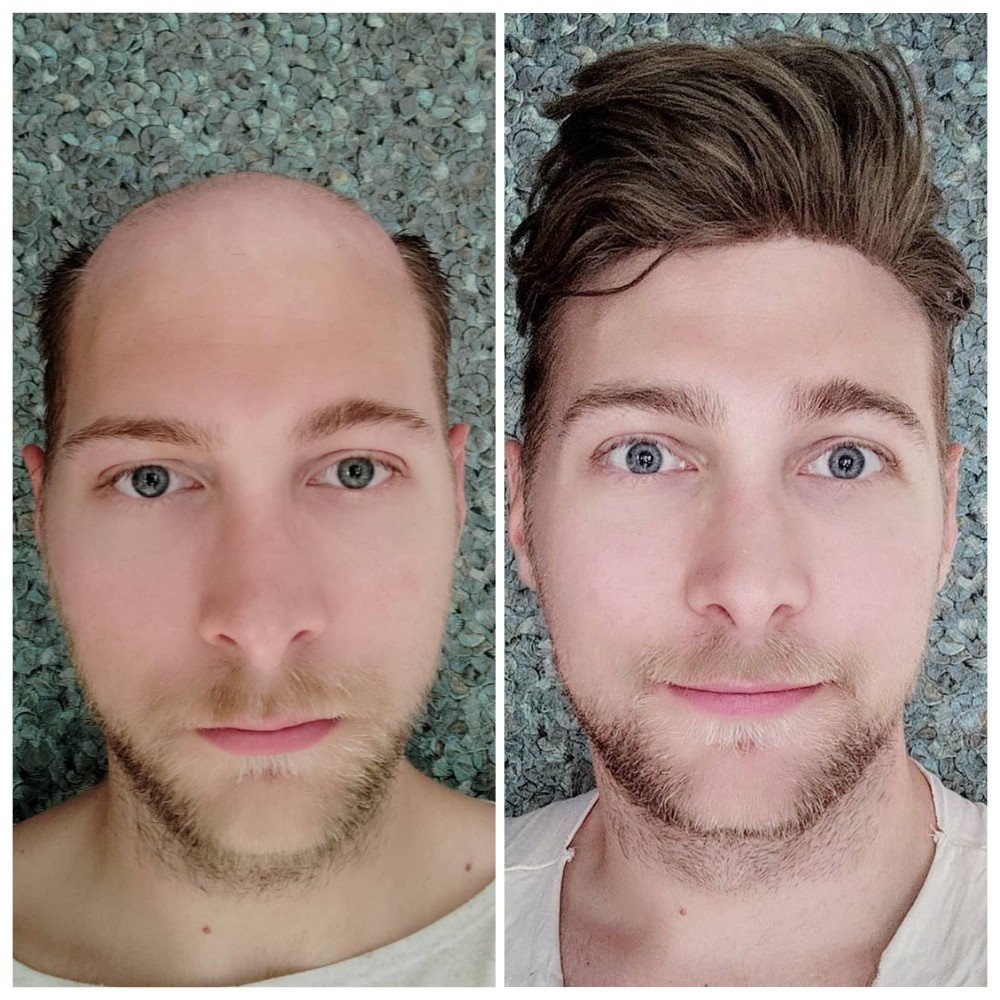 human hair replacement system