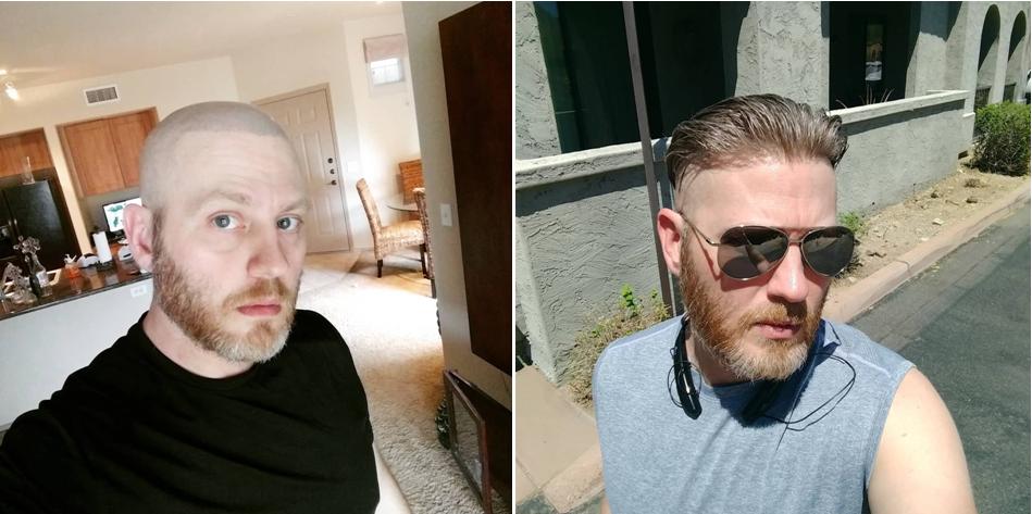 best men's hairpiece