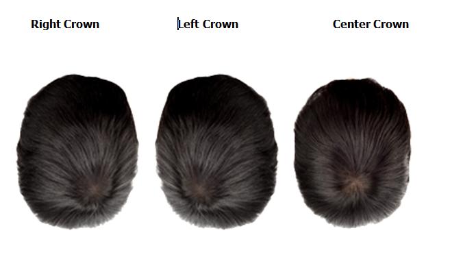 crown hair direction