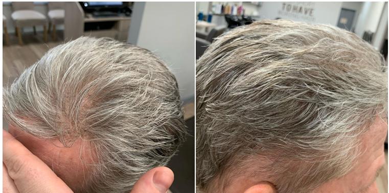 gray hair toupee