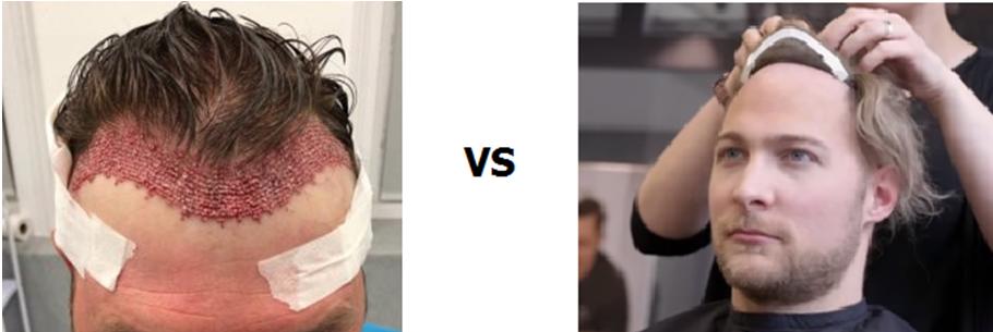 hair transplant vs hair system