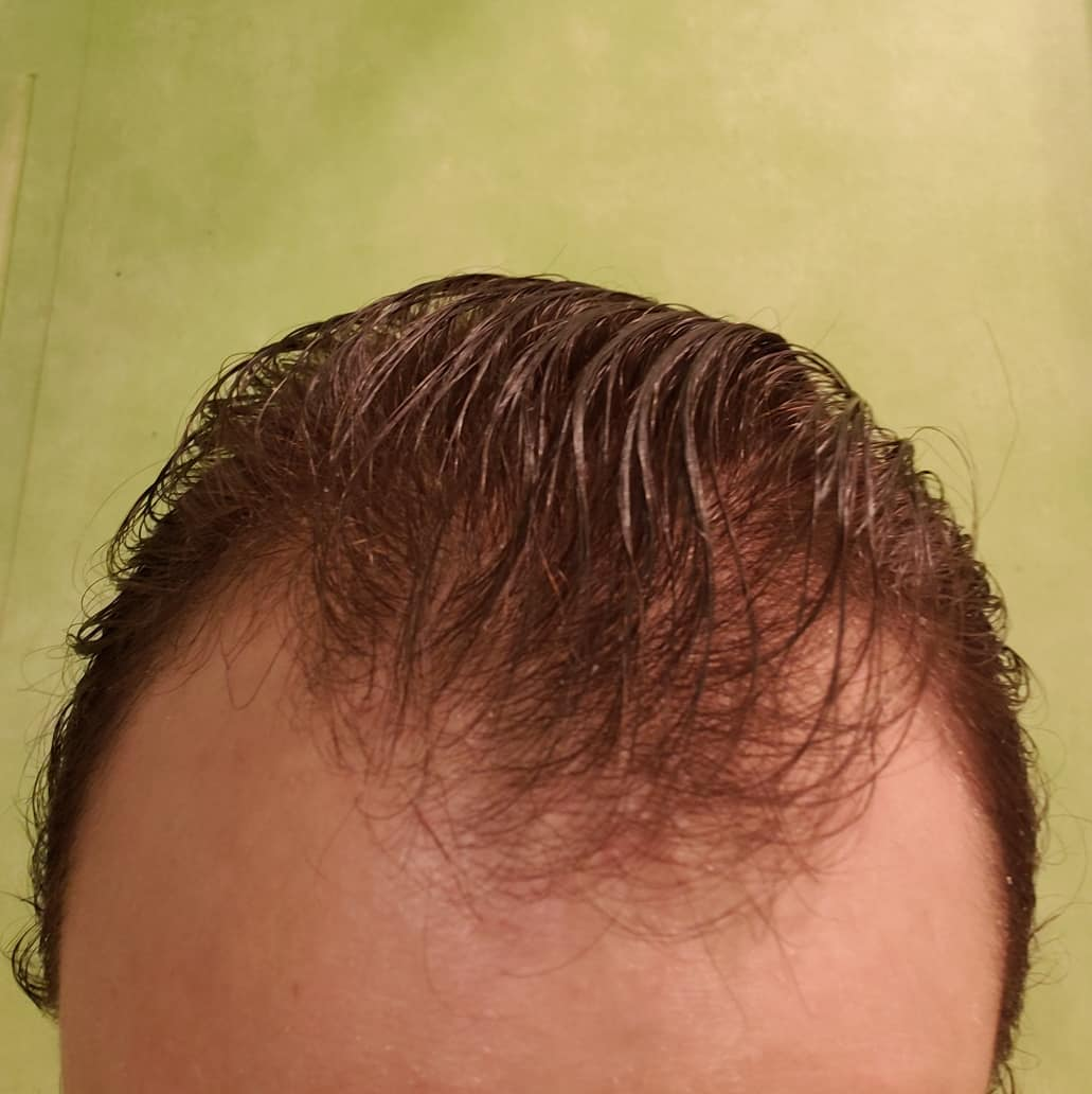 How To Solve The Problem Of Hair Thinning At Front Male