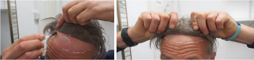 une la línea del cabello frontal