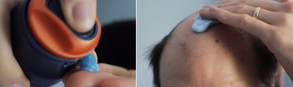aplicar protector de cuero cabelludo