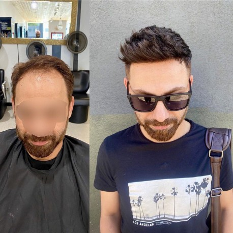 Helios Hair System for Bald Men | Full Swiss Lace Base | Best for Active Lifestyle