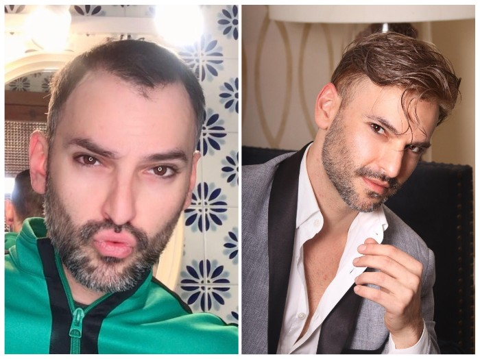 lavivid men's hair system