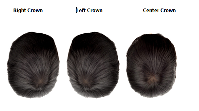 crown hair direction