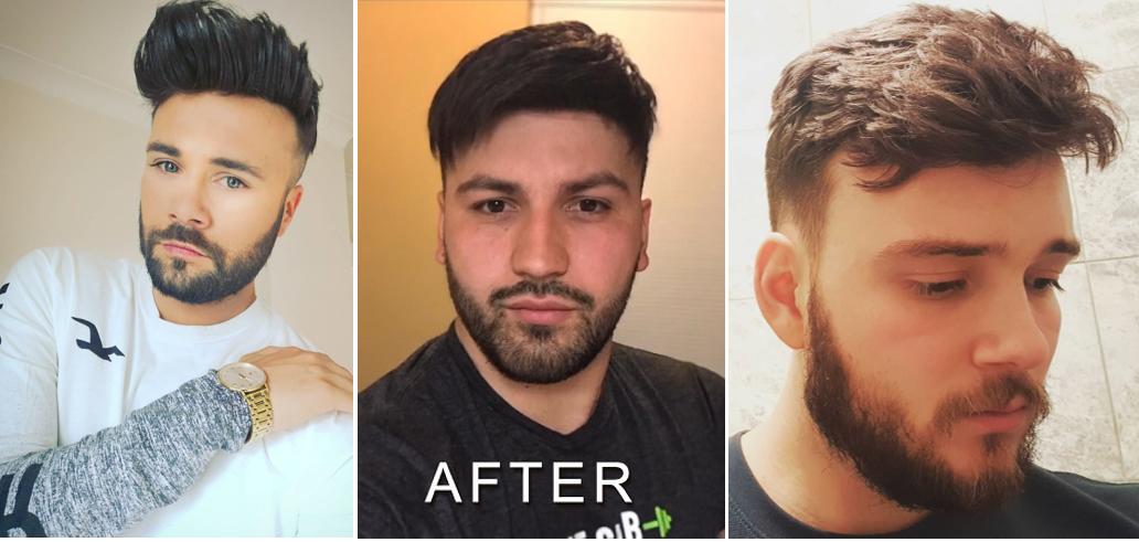 men's toupee glue on