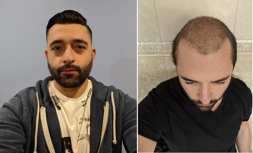 mens hair system before and after