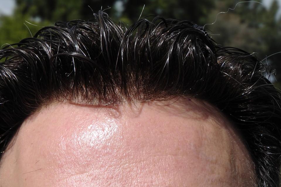shine hairline