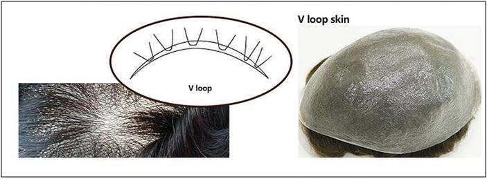 v-loop hair line