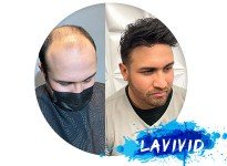 The Best Hair Loss Treatment That's Gaining Popularity